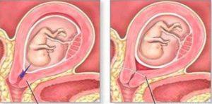 Зашить шейку матки на 26 неделе беременности