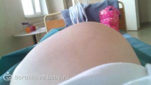 Беременность 36 недель боли промежности