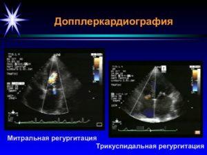 Регургитация трикуспидального клапана на узи 12 недель