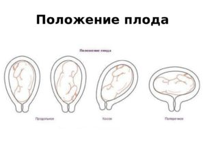 23 Неделя беременности поперечное положение плода