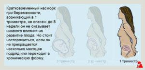 Насморк 7 недели беременности