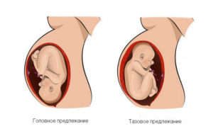 Головное предлежание плода на 23 неделе беременности
