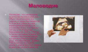 Умеренное маловодие при беременности 30 недель