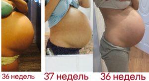 Опустился живот на 35 неделе беременности