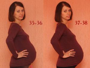 Тянет спину 37 неделя беременности
