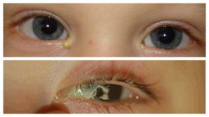 У ребенка гноится глаз 6 месяцев