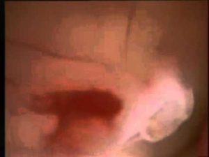 Кровотечение на 8 неделе беременности последствия
