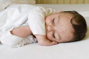 Лечение ветрянки у грудных детей