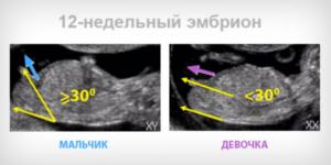 Виден ли пол ребенка в 12 недель