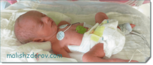 Вес двойни 33 неделе беременности