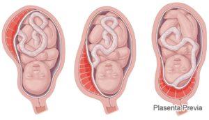 Низкая плацентация на 33 неделе беременности
