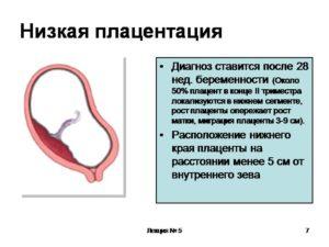 Низкая плацента 21 неделе беременности