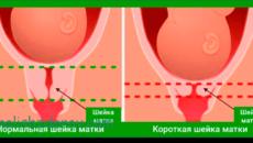 Короткая шейка матки при беременности 15 недель