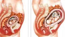 Тяжесть в животе на 9 неделе беременности