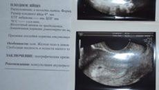 3 Недели от зачатия размер плодного яйца