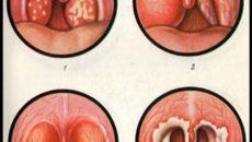 Болит горло 10 неделя беременности