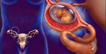Болят ли яичники первых неделях беременности