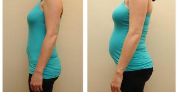 Двойня размер живота на 9 недели